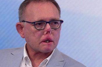 Médico pierde manos, piernas y parte de su cara tras lamida y arañazo de su perro